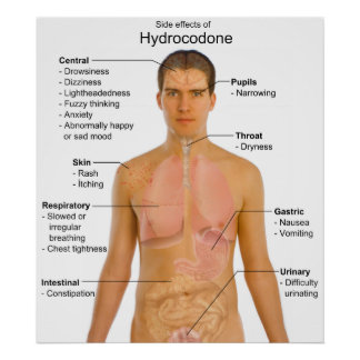 Chart of the Side Effects of Opioid Hydrocodone