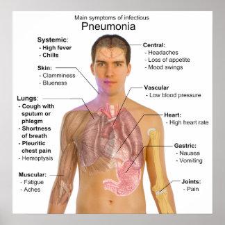 Chart of the Symptoms of Pneumonia
