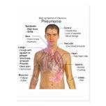 Chart of the Symptoms of Pneumonia Postcard