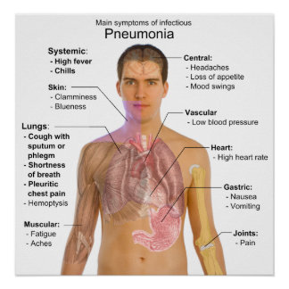 Chart of the Symptoms of Pneumonia Poster