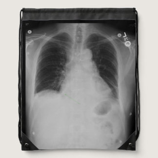 Chest X Ray ~ Backpack