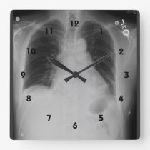 Chest X Ray ~ Clock