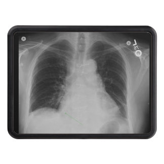 Chest X Ray ~ Hitch cover