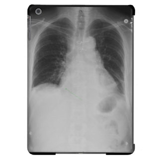 Chest X Ray ~ iPad Air case