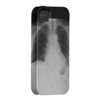 Chest X Ray ~ iPhone 4 CaseMate Tough case Vibe iPhone 4 Cover