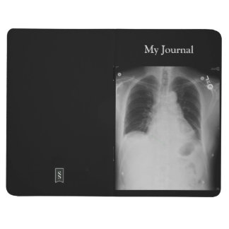 Chest X Ray ~ Journal