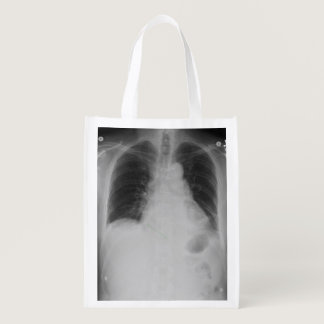 Chest X Ray ~ Poly bag