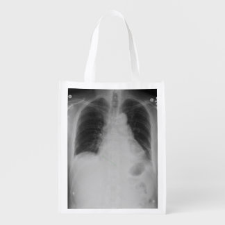 Chest X Ray ~ Poly bag Grocery Bags