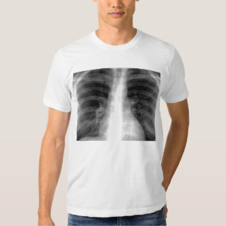 Chest X-ray T Shirt