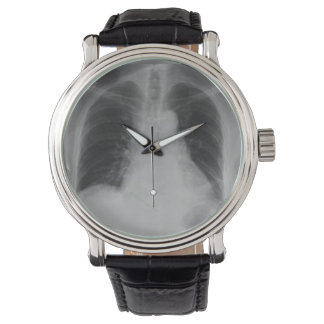 Chest X Ray ~ watch