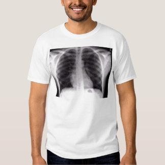 chest xray t-shirt