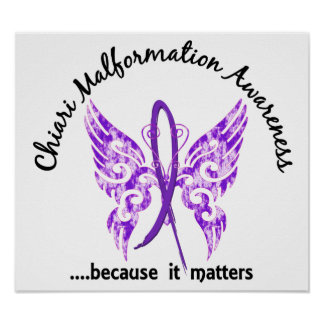 Chiari Malformation Butterfly 6.1 Poster