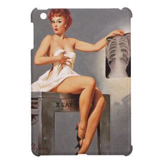 Chica modelo de la radiografía del rayo de Gil Elv iPad Mini Carcasa