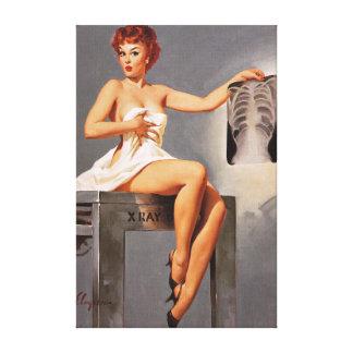 Chica modelo de la radiografía del rayo de Gil Elv Impresion De Lienzo
