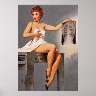 Chica modelo de la radiografía del rayo de Gil Póster