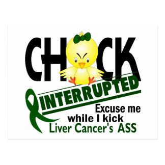 Chick Interrupted 2 Liver Cancer Postcard