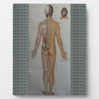 Chinese Doctor Back body acupuncture point map art Plaque