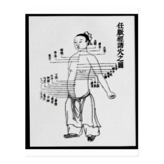 Chinese Medicine chart Postcards