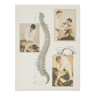Chiropractic Spinal Adjustment Poster