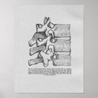 Chiropractic Subluxation Vintage Print