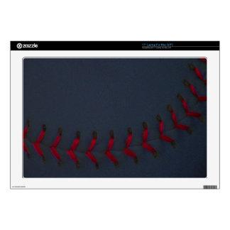 "Choose Your Color Baseball - Softball Skin For 17"" Laptop"