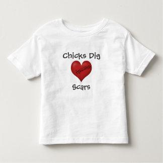 Cicatrices del empuje de los polluelos camiseta
