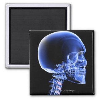 Ciérrese encima de la radiografía de los huesos en imán cuadrado