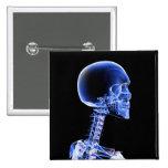 Ciérrese encima de la radiografía de los huesos en pin cuadrada 5 cm