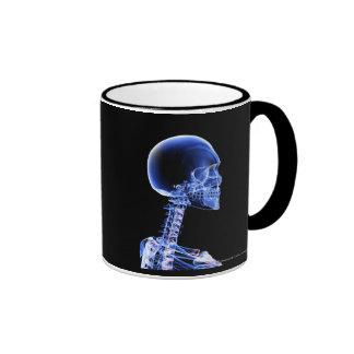 Ciérrese encima de la radiografía de los huesos en tazas de café