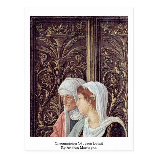 Circumsicion del detalle de Jesús de Andrea Manteg Postal