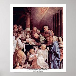 Circuncisión del niño Jesús de Reni Guido Póster