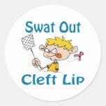 Cleft-Lip Round Stickers