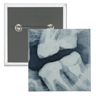 Close-up of a dental X-Ray 2 Inch Square Button