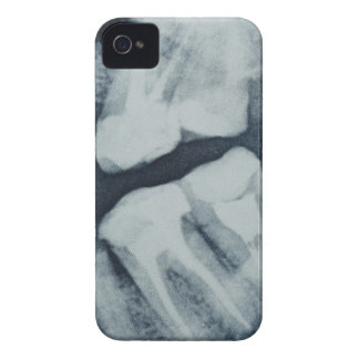 Close-up of a dental X-Ray iPhone 4 Case