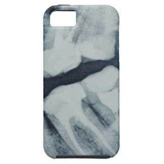 Close-up of a dental X-Ray iPhone SE/5/5s Case