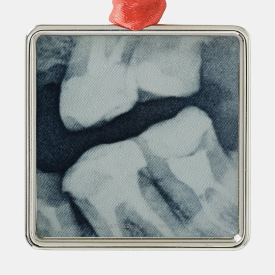 Close-up of a dental X-Ray Metal Ornament
