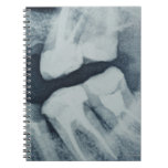 Close-up of a dental X-Ray Spiral Notebook