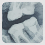 Close-up of a dental X-Ray Square Sticker