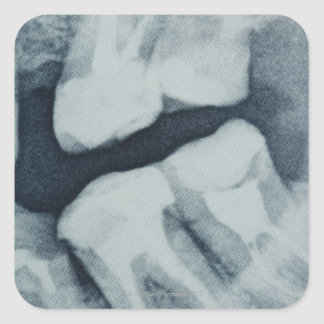 Close-up of a dental X-Ray Square Stickers