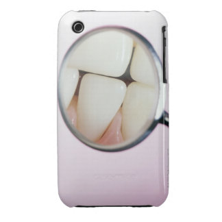 Close-up of teeth reflected in dental mirror Case-Mate iPhone 3 cases