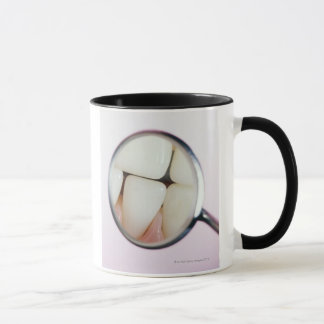 Close-up of teeth reflected in dental mirror mug