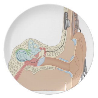 Cochlear Implants Melamine Plate