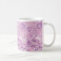 Coffee Mug-Breast Cancer Cells Coffee Mug
