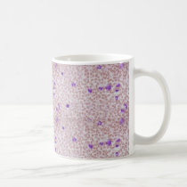Coffee Mug - Chronic Myeloid Leukemia (CML)