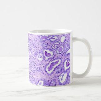 Coffee Mug-Prostate Cancer Coffee Mug