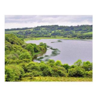 Colgagh Lough Lakes Ireland 4 Postcard