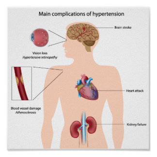 Complications of hypertension Poster