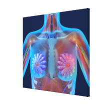 Computer artwork representing breast cancer, canvas print