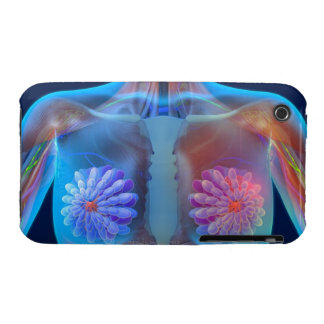 Computer artwork representing breast cancer, Case-Mate iPhone 3 case