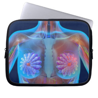 Computer artwork representing breast cancer, computer sleeve
